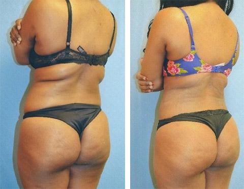 liposuction patient photos