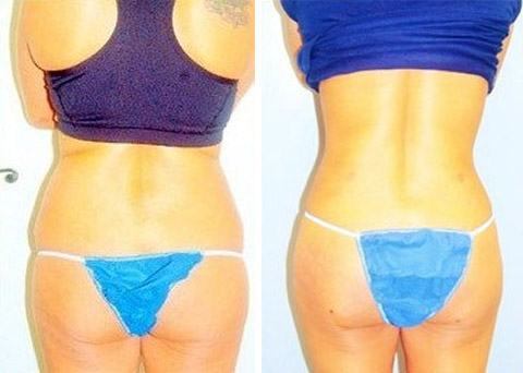 long island liposuction