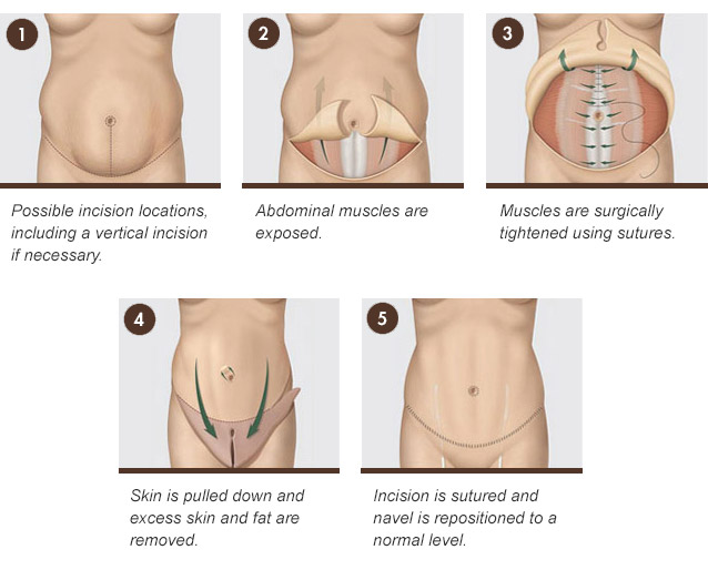 tummy tuck procedures