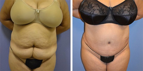 abdominoplasty long island