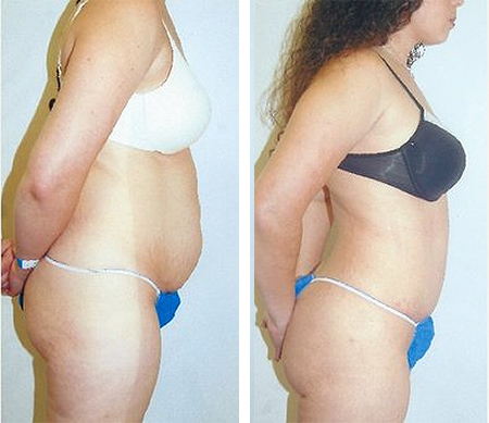 long island abdominoplasty