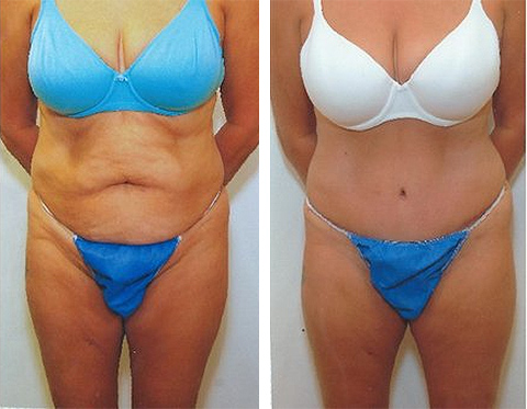 long island tummy tuck photos