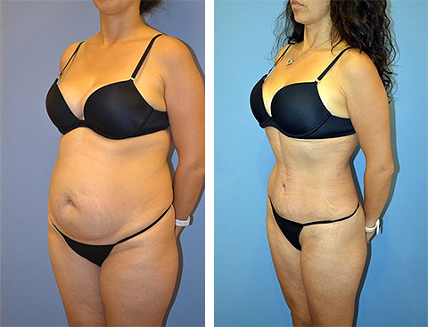 long island tummy tuck