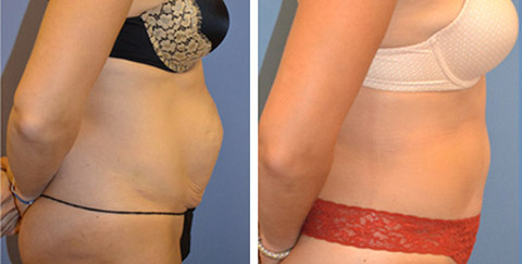 tummy tuck long island new york