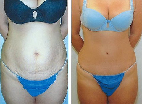 tummy tuck patient photos