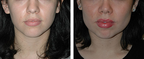 buccal fat removal before/after