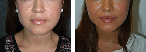 cheek fat reduction before/after