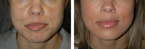 cheek fat removal before/after