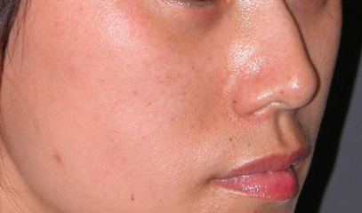 cheek implants surgery after photo patient