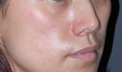 cheek implants surgery before photo patient