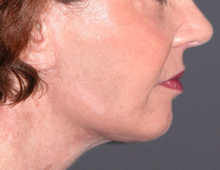 chin augmentation after photo patient