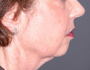 chin augmentation before photo patient