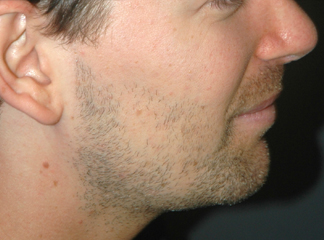 chin implant male after photo patient 2