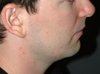 chin implant male before photo patient
