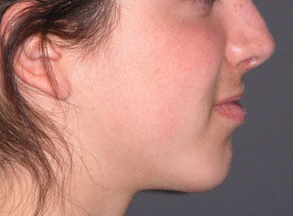 chin surgery implant after photo patient 1