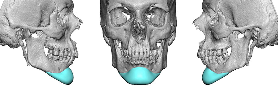 custom ct scanned chin implants