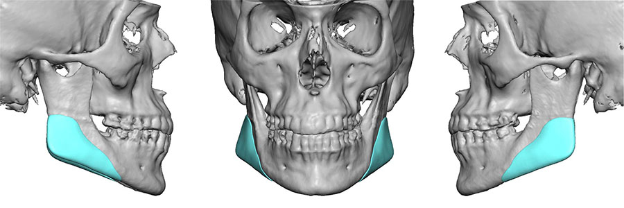 custom ct scanned gonial jaw implants