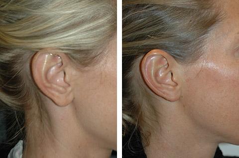 earlobe reduction and earlobe repair