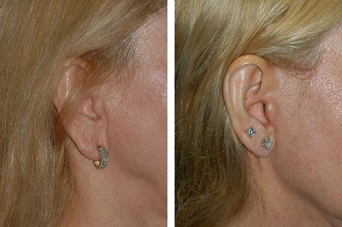 earlobe reduction new york city