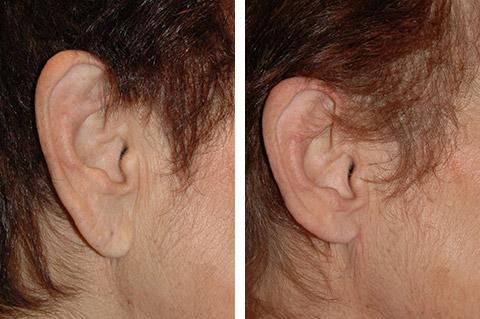 new york earlobe reduction