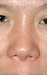 Ethnic Rhinoplasty - Patient 4 - Front - After