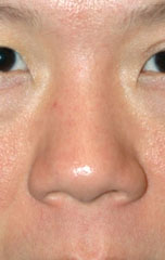 Ethnic Rhinoplasty - Patient 4 - Front - Before