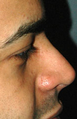 Ethnic Rhinoplasty - Patient 1 - Lateral Right - After