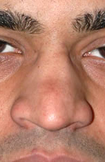 Ethnic Rhinoplasty - Patient 1 - Front - Before
