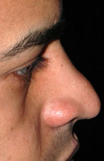Ethnic Rhinoplasty - Patient 1 - Lateral Right - Before