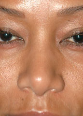 Ethnic Rhinoplasty - Patient 3 - Front - After