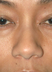 Ethnic Rhinoplasty - Patient 3 - Front - Before