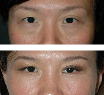 best asian blepharoplasty new york city