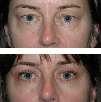 best blepharoplasty results new york