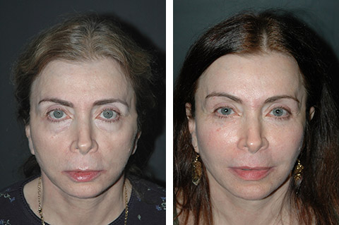 blepharoplasty patient before and after photos