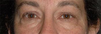 eyelift surgery new york