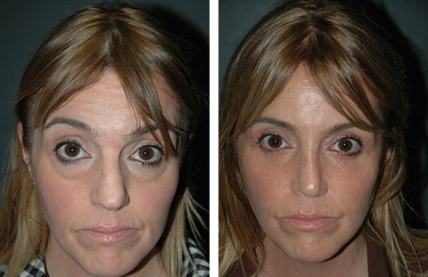 eyelid surgery, facelift surgery, london facelift |Lower Blepharoplasty Recovery Photos