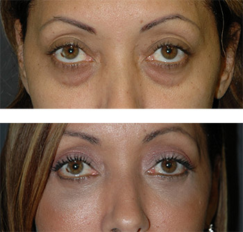lower eyelid bag removal