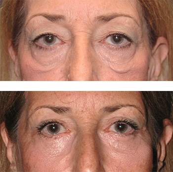 lower lid festoon blepharoplasty