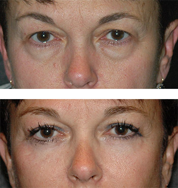 new york blepharoplasty specialist