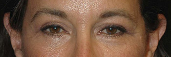 new york eyelid surgery
