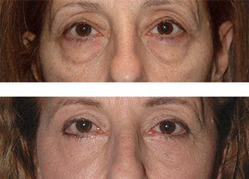 top blepharoplasty results new york