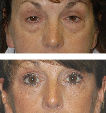 top eyelid surgery photos nyc