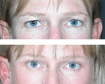 upper and lower blepharoplasty photos