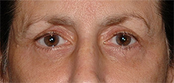 upper eye lift patient after photo