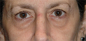 upper eye lift patient before photo
