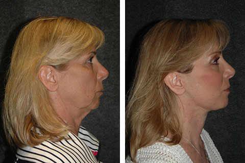 best face lift surgeon new york ny