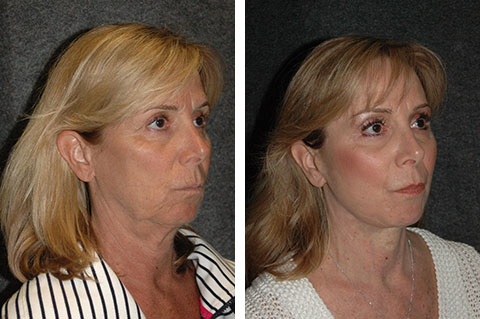 best face lift surgery results nyc