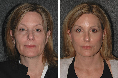 best facelift before after photos nyc