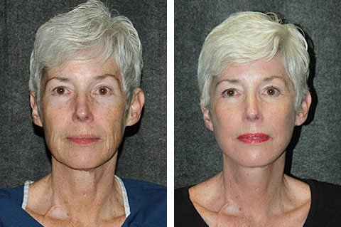 best facelift before and after patient pictures