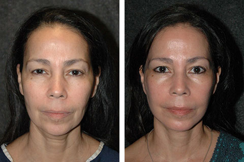 best facelift before and after pics